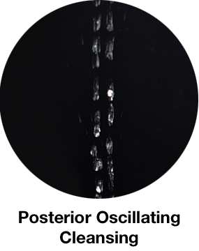posterior ossilating